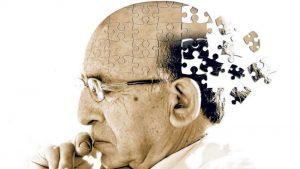 Признаки, симптомы и лечение болезни Альцгеймера